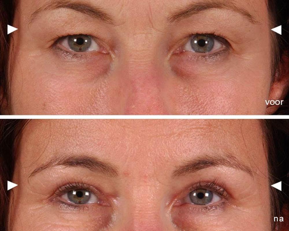 nazorg ooglidcorrectie